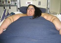 После операции по снижению веса о материнстве следует забыть на годы