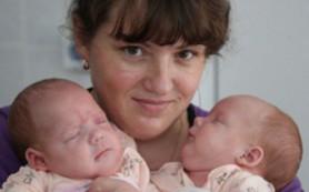 Алтайских сиамских близнецов выписали домой