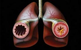 Бронхиальная астма увеличивает степень риска акушерских осложнений