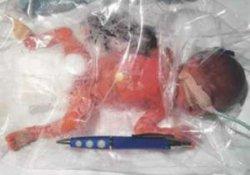 Для недоношенных детей пластиковый пакет может стать заменой кувеза