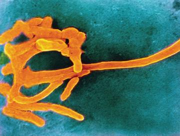 Фузобактерии, проникая из полости рта в плаценту, способны вызвать внутриутробную гибель плода