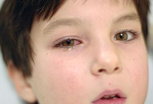 Лечение коньюктивита у детей, формы и разновидности коньюктивита