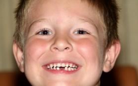 Молочные зубы ребёнка: как сохранить их здоровыми