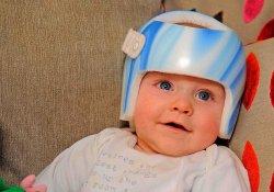 6-месячный малыш носит шлем для исправления формы головы по 23 часа в сутки