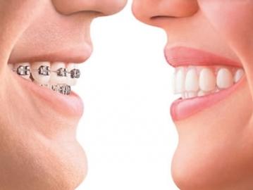 Исправление дефектов прикуса и зубов