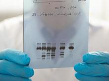 Гены ребенка повышают риск того, что он родится раньше срока