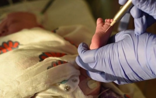 Ученые установили у младенцев пониженный болевой порог