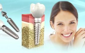 Плюсы лазерной имплантации зубов