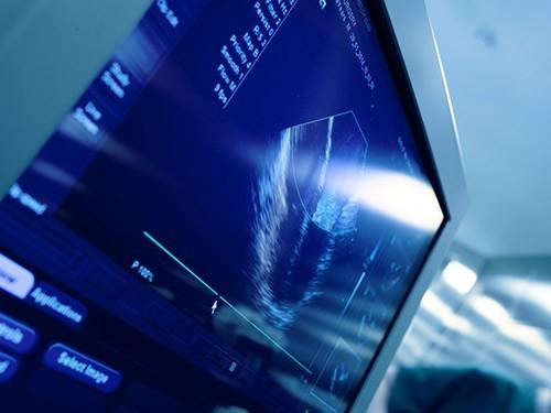 Минздрав рассказал, как можно сократить число абортов