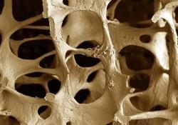 Частые беременности чреваты остеопорозом