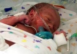 Уникальный метод генетического анализа спасет жизни недоношенных детей