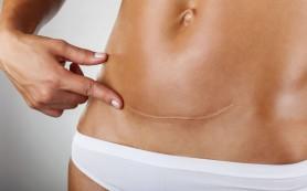 Кесарево сечение: нужен ли послеоперационный бандаж