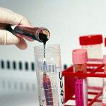 Ученые в шаге от создания нового теста для диагностики генетических заболеваний у детей