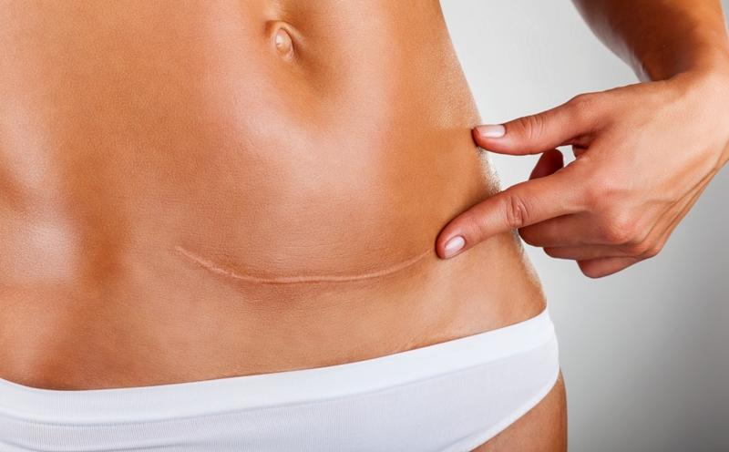 Пластика интимная кесарево сечение