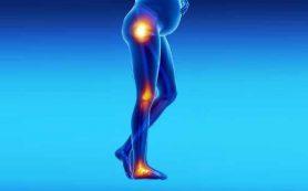 Ревматоидный артрит у женщин репродуктивного возраста связан с риском развития эпилепсии у потомства