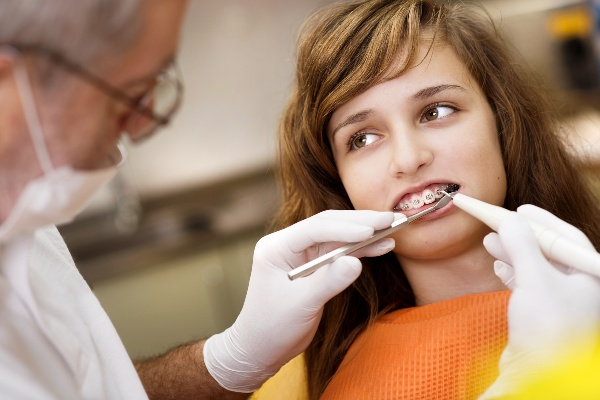 Описание процедуры установки брекетов в стоматологии