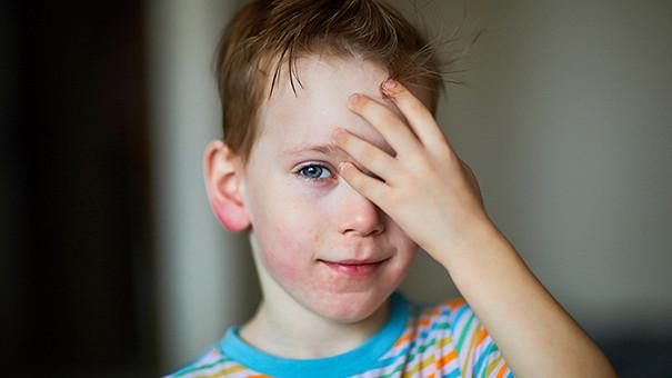 Крапивница у детей: симптомы и лечение