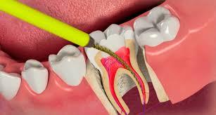 Биологическое и хирургическое лечение пульпита зуба