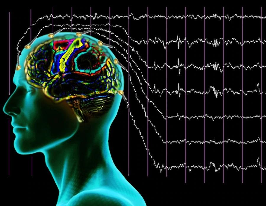 Центр по лечению эпилепсии