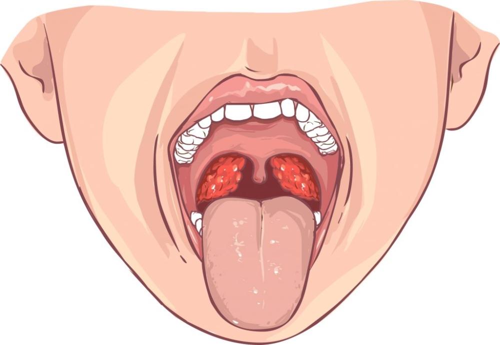 Чем лечить больное горло у ребенка