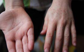 Как распознать и лечить вирус Коксаки у ребенка?