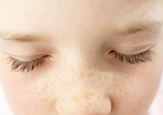 Пигментные пятна у детей: родинки, гемангиомы и веснушки