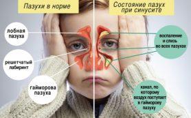 Гайморит у детей: признаки, симптомы и правильное лечение